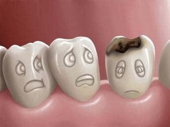 Próchnica zębów – pomocna rola diety Narodowe Centrum Edukacji ...